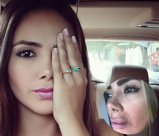 Modelo denunció a su ex pareja por un grave caso de maltrato físico