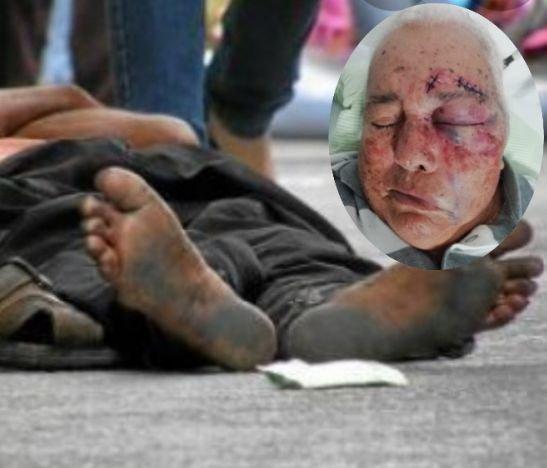 Habitante de la calle atacó salvajemente a un adulto mayor en Ciudad Luz