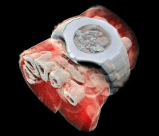 Las primeras imágenes de rayos X a color