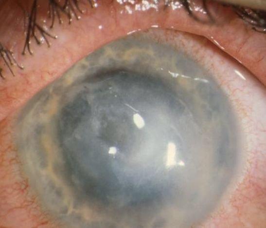 Alerta por aumento de casos de una rara infección en los ojos por usar lentes de contacto