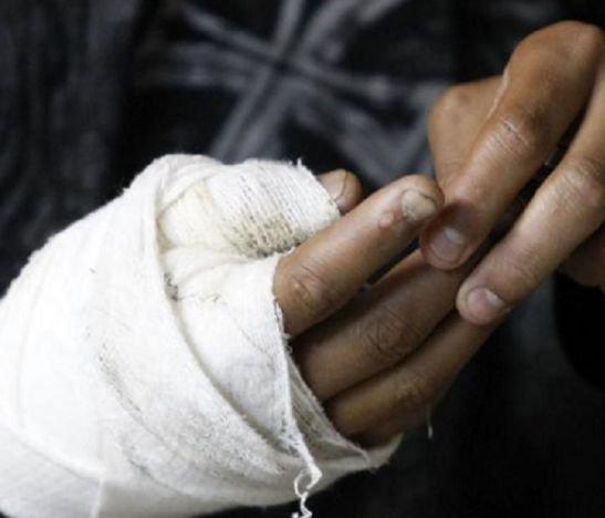 Aumenta a 13 el número de quemados con pólvora en el departamento del Tolima