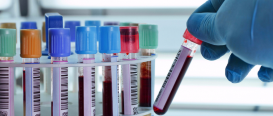 Tubos muestra sangre